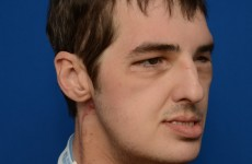 Pictures: Results of most extensive face transplant ever