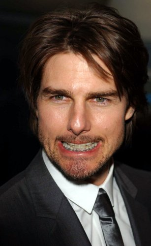 7 Celebs Who Faced The Horror Of Adult Braces 183 The Daily Edge
