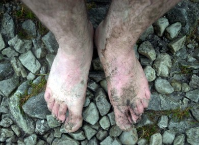 The feet of people who went bare foot on their annual climb of Croagh Patrick in 2002.